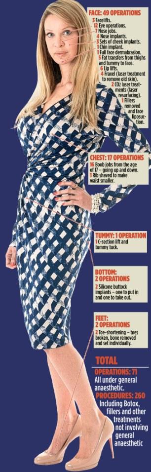 Operations: Alicia Douvall's nips and tucks