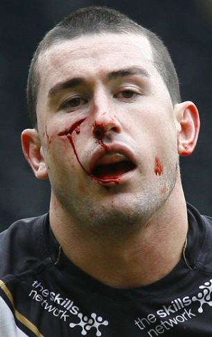 Bloody mess: Hull FC's Shannon Mcdonnell was left needing stitches after this horrendous cut