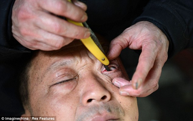 Ouch: Barber Liu Deyuan scrapes a blade over a customer's eyeball in China, where eyeball cleaning is an ancient craft