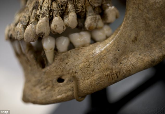 Numerous small knife cuts and punctures in the mandible of  'Jane of Jamestown' can be clearly seen