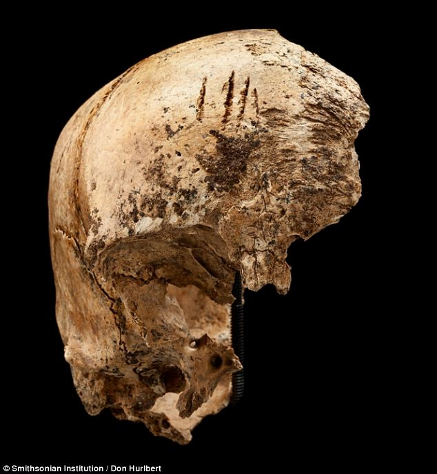 Four shallow chop marks on the top of the girl's skull, evidence of cannibalism during the 'starving time' over the winter of 1609-1610