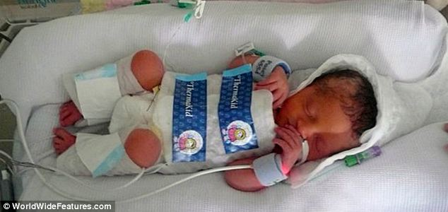 Fighting for survival: Lily Cracknell, just days old, wrapped in the cooling bag that saved her life. Her temperature dropped from 37C  to 35.5C