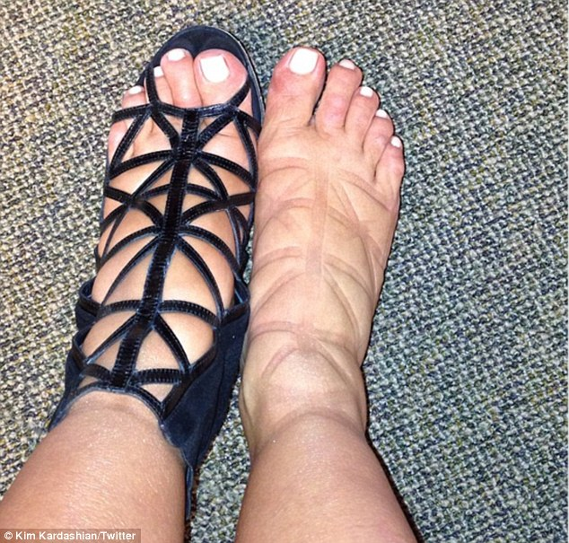 'Swollen feet or a new Givenchy tattoo?' The reality star wore the same constricting Givenchy booties during her Sunday outing