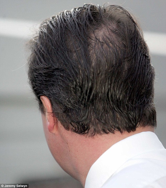 Pierce received a telling-off from Prime Minister David Cameron after revealing he had developed a bald spot on his head