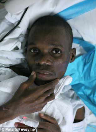 Evans Monsignac survived 27 days buried underneath earthquake rubble, in Port-au-Prince, Haiti