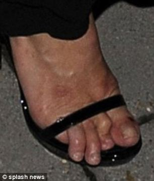 Ouch! Far from looking their best, Kate Moss's digits look cramped and painful
