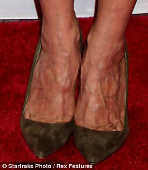 Sarah Jessica Parker's feet look like they hurt. Maybe a girl CAN have enough shoes?