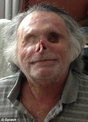 Mr Poppo is smiling again one year after a 75 per cent of his face was chewed off by Rudy Eugene