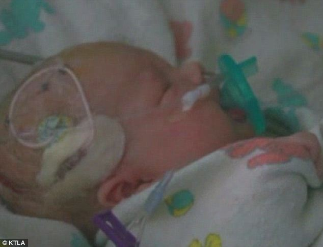 Ingenious: 20-day-old Ashlyn Julian was saved when doctors improvised a way to close her aneurysm, rarely seen in infants, using surgical super glue