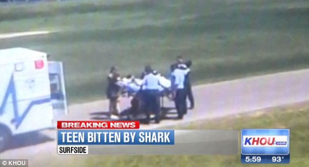 Injuries: The teenager suffered cuts to his leg and lacerations on his hand in the shark attack