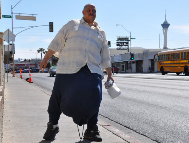 Unhappy: Wesley Warren expected his life to be transformed after he had his 132 lbs scrutom removed, but the surgery has left him 'disfigured'