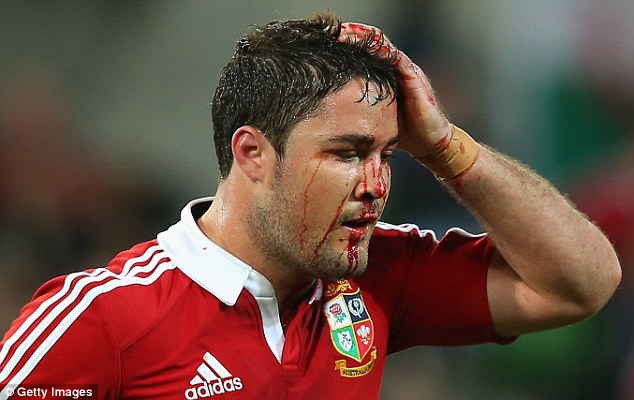 Heads up: Brad Barritt sports a nasty wound as the second string are given a bloody ride by the Melbourne Rebels