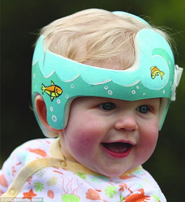 Expensive: To treat flat head syndrome, some parents turn to head bands like the DOC band, which can cost upwards of $3,000