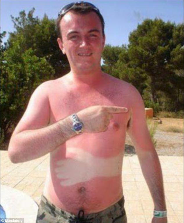 Who's hand is that? A sunbather gets a pale white hand on his stomach