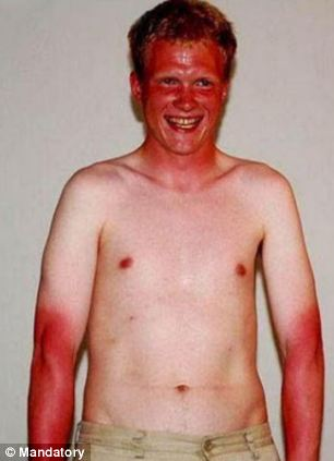 The outline of this man's t-shirt show the importance of covered skin in the sun