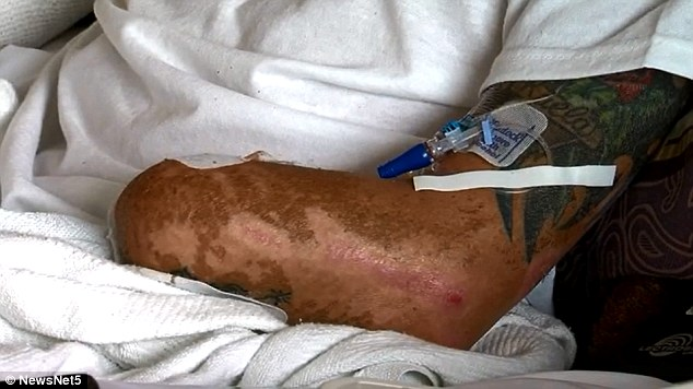 Ouch: In addition to losing his arm, surgeons had to do skin grafts to replace skin lost during the blast with skin from Skubic's legs