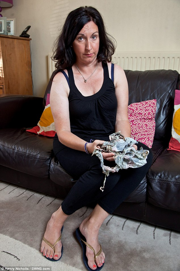 Race for life: She quickly tried to pat down the flames but when her dress kept burning she was forced to throw herself into a cold shower to put them out