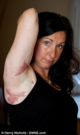 Painful: She suffered third-degree burns across 40 per cent of her body with painful sores developing on her armpits, back, arms and hands