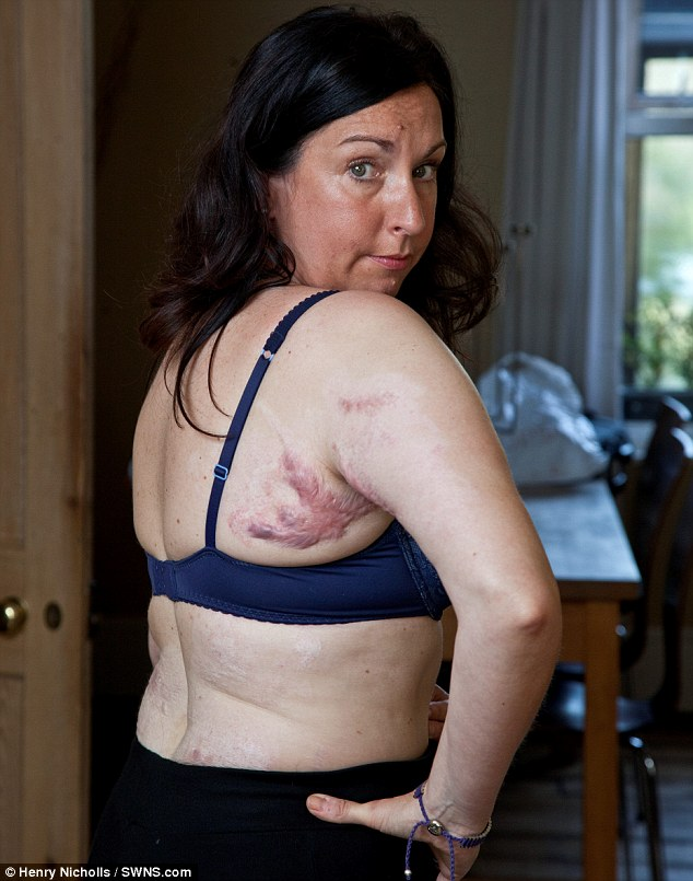 Scarred for life: Despite calling an ambulance straight away Rachel was forced to wait three hours for it to arrive - and then medics failed to recognise the severity of her burns