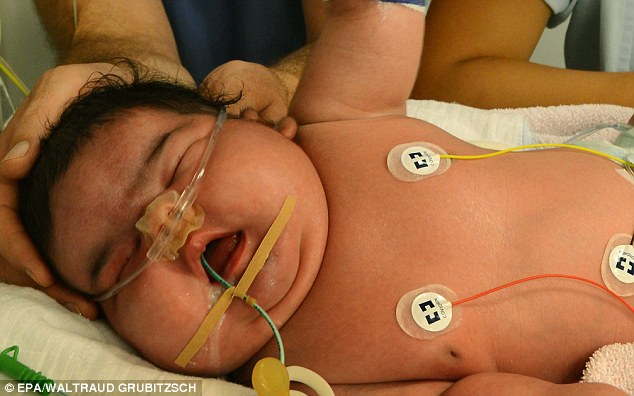The mother, who gave birth at University Hospital in Leipzig, discovered she had a previously undiagnosed case of gestational diabetes which can lead to a larger than usual birth weight
