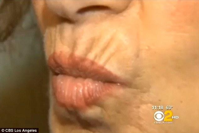 Water bottles lip wrinkles