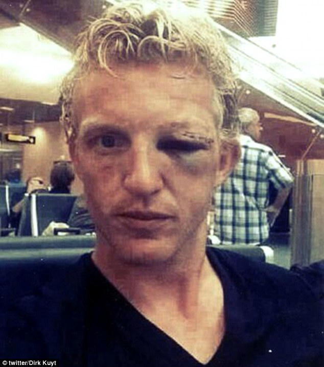 Black eye: Dirk Kuyt showed off the result of his clash of heads that left Jonathan de Guzman in hospital