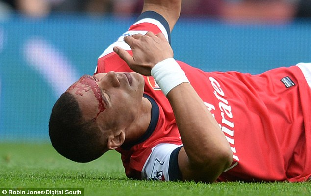 Arsenal's Kieran Gibbs lies on the floor with a cut head in the game and he may be ruled out on Wednesday