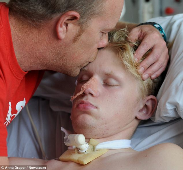 'I still kiss him like I always have': Mr Smith tenderly kisses his son on the forehead. The family are cautiously optimistic about his chances, but Mr Smith admits that, even if his boy recovers, 'it won't be the same Ryan'