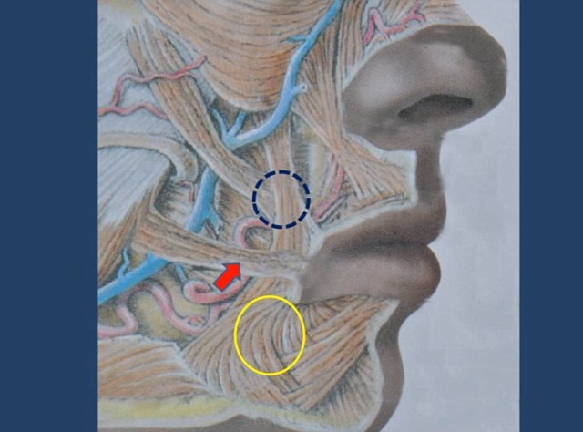 The muscles in the yellow circle pull the corner of the mouth down if they are too strong and so are cut while the red arrow and blue circled muscles are repositioned