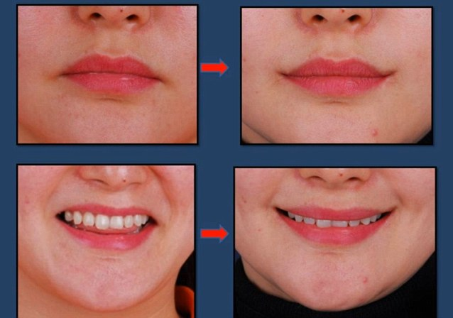 The before and after pictures are shown on the AONE clinic's YouTube video