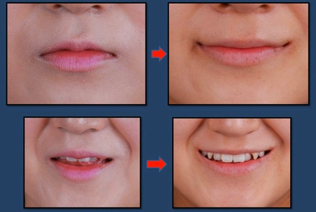 The results of the procedure (right) lengthens the mouth as well as lifting the corners