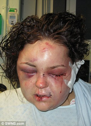 Horrific attack: Charlotte Small, 33, after she had been attacked by her former partner