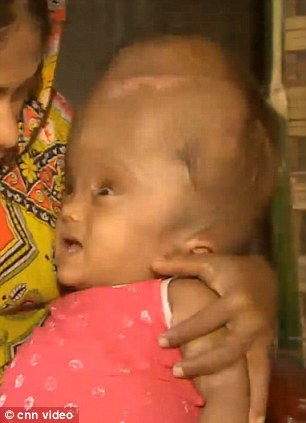 When she was born doctors gave Roona Begum just months to live. Her head - triple the size of an average baby - was filled with ten litres of excess fluid inside her brain
