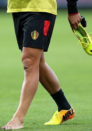 Plenty to Ponder: Eden Hazard limps off the Hampden Park pitch