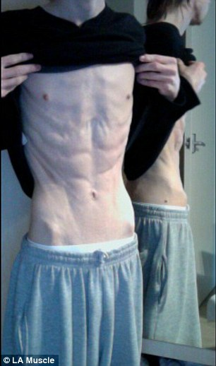 Frightening: At his most ill, Carl weighed just 5st 5lb and was 'obsessed' with weight