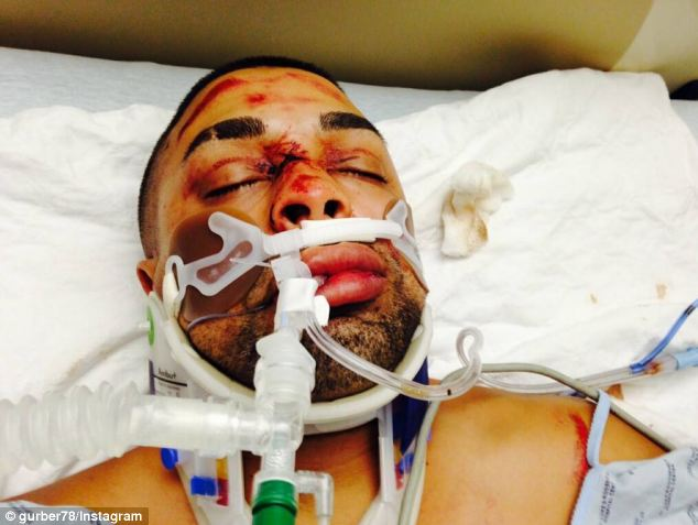 Injuries: The biker, Edwin Mieses, Jr., suffered a broken spine and will not be able to walk again, his family said
