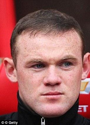 Wayne Rooney after his hair transplant