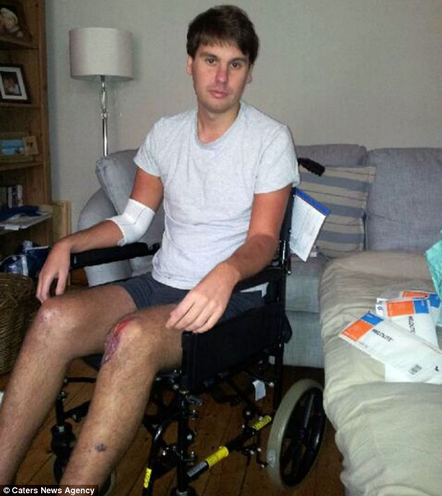 Mr Mitchell became trapped between his seat and the steering wheel of his car in the collision