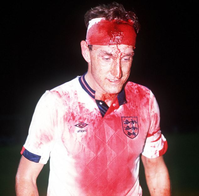 Action hero: England's Terry Butcher is covered in blood after his clash of heads during World Cup qualifier against Sweden in 1989