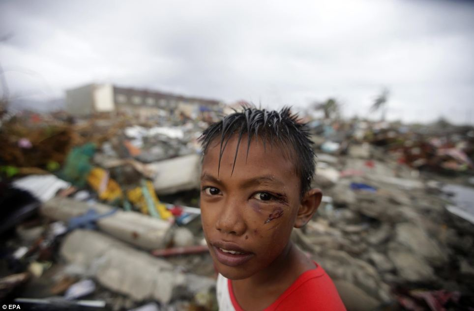 An injured Filipino boy stand in front of the rubble of houses in Tacloban - destroyed by the typhoon that has left thousands of people dead