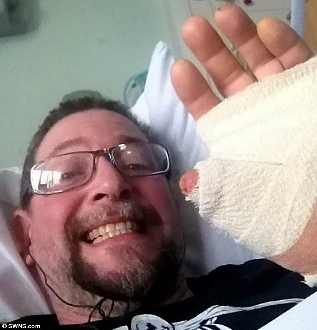 Bite: Steve Davies in hospital after being bitten on his thumb by a false widow spider