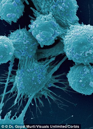 Human prostate cancer cells. Much higher levels of the protein, NAALADL2, were found in prostate tumour tissue than in healthy tissue
