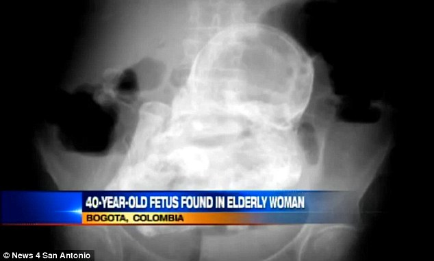 An 82-year-old Colombian woman suffering from stomach pain was found to have a 40-year-old foetus inside her