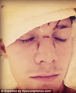 Aftermath: Hilton posted a photo of his beaten face following the scuffle on December 6