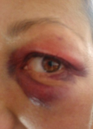 Injured: The attacker punched her in the eye before running off
