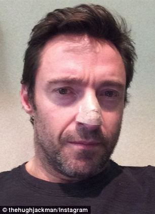 Actor Hugh Jackman posts a picture of himself after he is treated for skin cancer