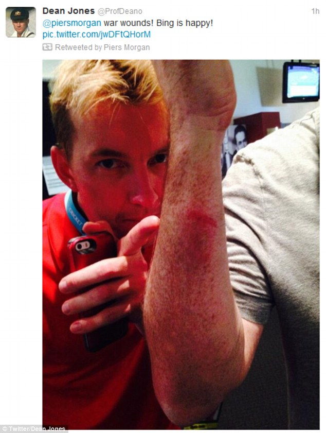 Ouch! Former Australian player Dean Jones posted this picture of Morgan's bruises afterwards as Brett Lee inspects the damage he caused