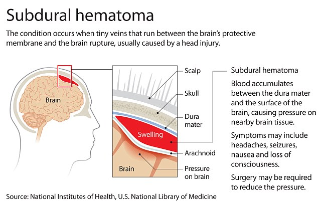 No time to lose: A diagram explaining the dangers of a subdural hematoma, a potentially fatal brain injury which Michael Schumacher is believed to have suffered after his fall