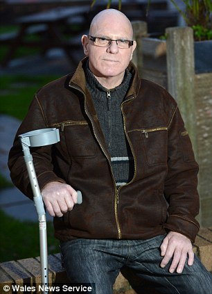 Coma: Alan Harbidge had liver and kidney failure and his fingers swelled up from the mystery infection