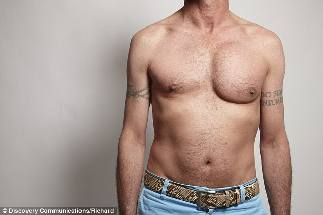 Painful: Hairdresser Brett was left with a lopsided chest after one of his pec implants became badly infected